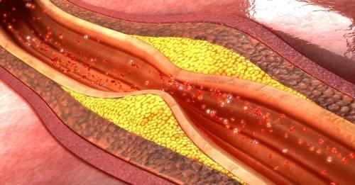 8 alimentos para destapar las arterias