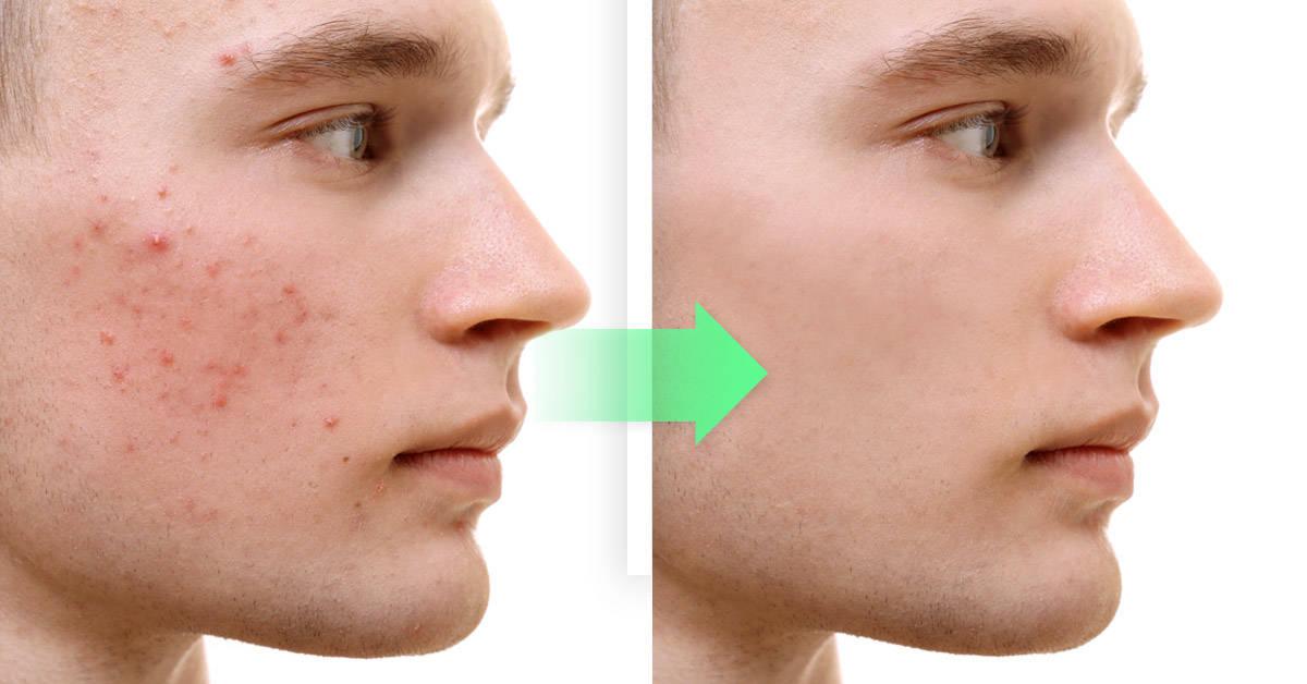Cómo eliminar el acné de manera natural con aloe vera