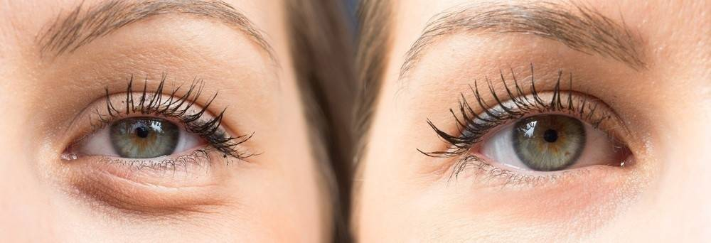 5 métodos para reducir las bolsas bajo los ojos que no te habían explicado a..
