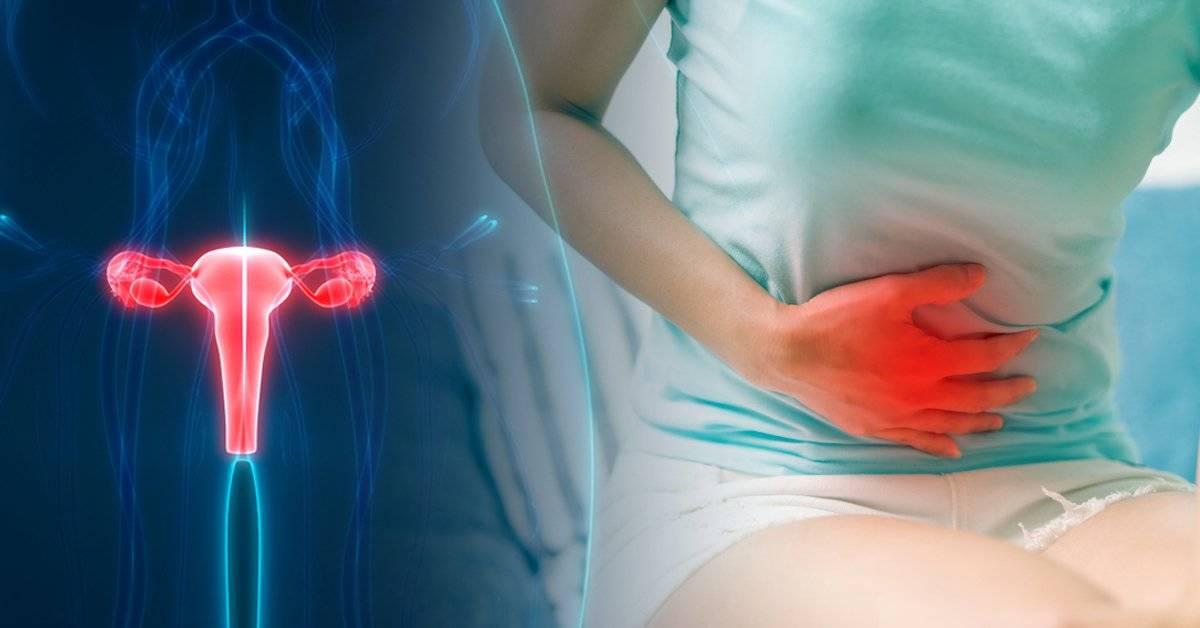 Mitos y realidades sobre el Síndrome Premenstrual