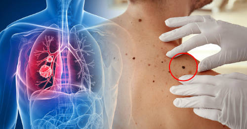 tipos de cancer mas comunes, cancer de pulmon y cancer de piel