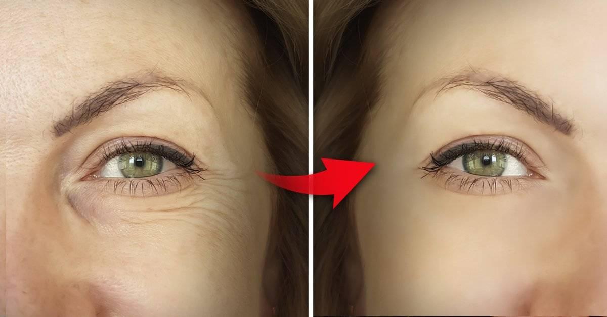 6 pasos asegurados para eliminar las arrugas profundas de la cara