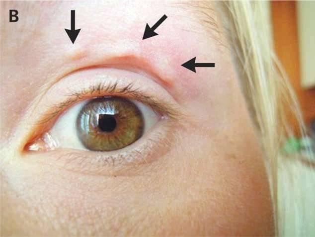 Viral: esta mujer tenía misteriosas erupciones en la cara y nunca imaginó lo que tenían adentro