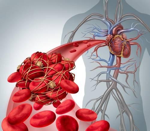 Qué factores aumentan las posibilidades de padecer una trombosis y cómo prev..