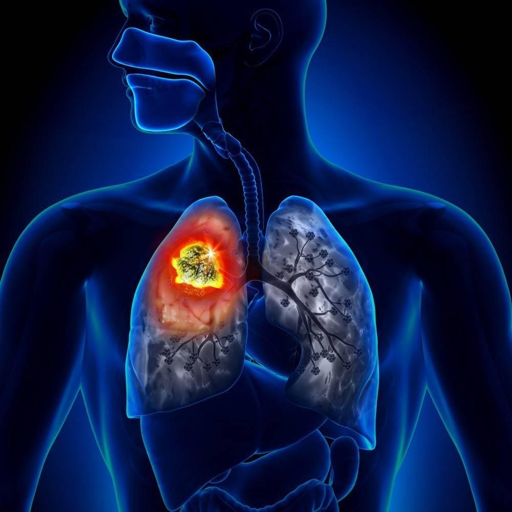 8 síntomas del cáncer de pulmón que puedes detectar temprano