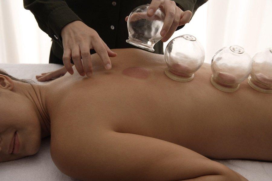cupping ventosaterapia medicina china