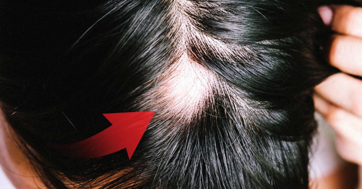 Alopecia: esto es todo lo que deberías saber