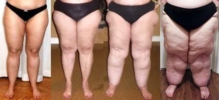 """Qué es el """"Lipedema"""", en qué se diferencia de la obesidad y cómo saber si l.."""