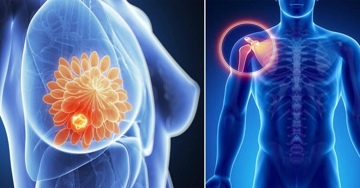 Qué es el sarcoma, el peligroso cáncer que casi no tiene síntomas visibles