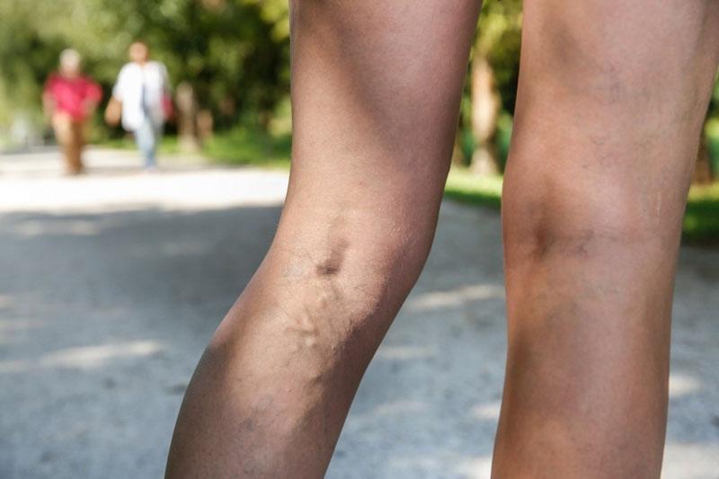 dolor en las venas de la pierna izquierda