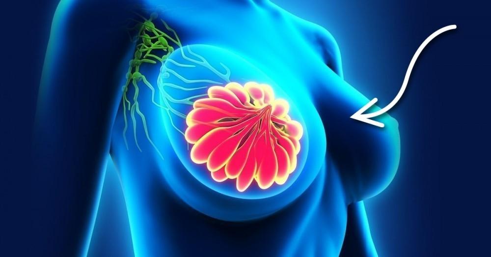 dolor y liquido blanco linear unit los senos