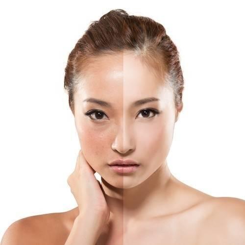 Secreto japonés para mejorar el aspecto de la piel