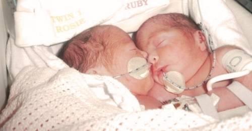 Les dieron tan solo unas horas de vida, pero estas gemelas siamesas inspiran a..