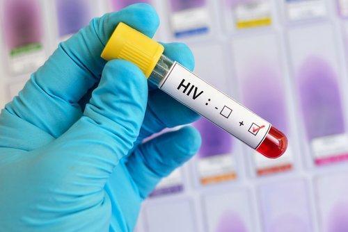 Esta podría ser la primera persona en haberse curado de VIH sin tratamiento