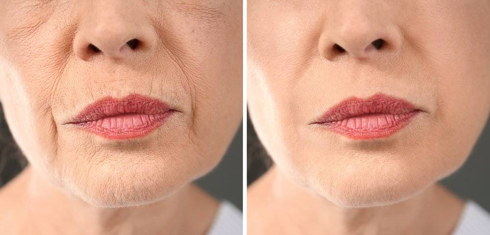 Este secreto asiático te ayuda a deshacerte de las arrugas de la forma más sencilla e inesperada