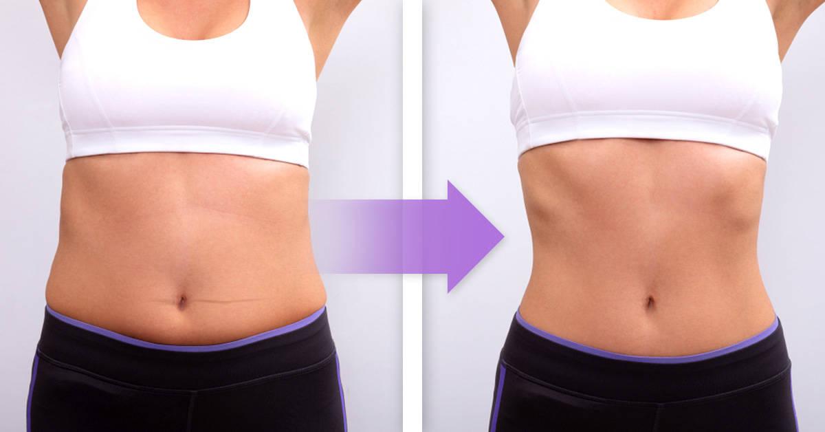 Flacidez abdominal: causas y ejercicios sencillos para combatirla