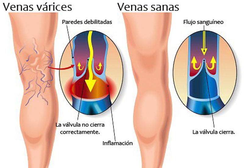 Parte las sangre el la piernas aumentar Cómo flujo a inferior de de