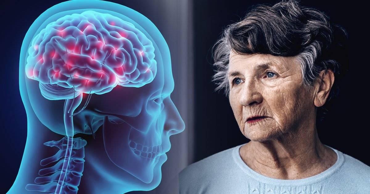 Una simple prueba que indica si tienes riesgo de padecer Alzheimer