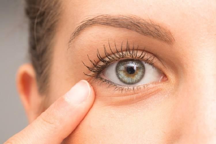 0_remedios-bolsas-ojos_(2).jpg