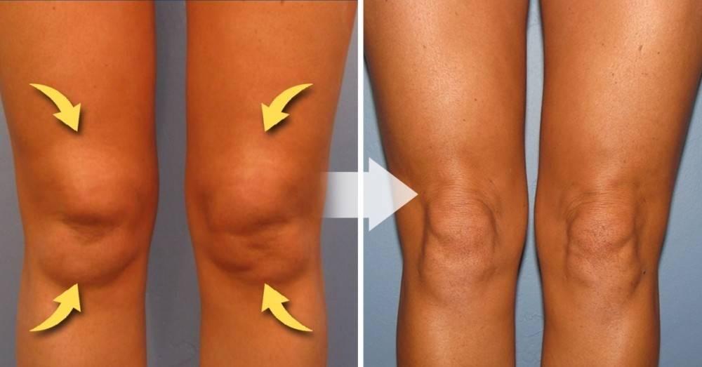 Cómo eliminar los rollitos de las rodillas de una vez