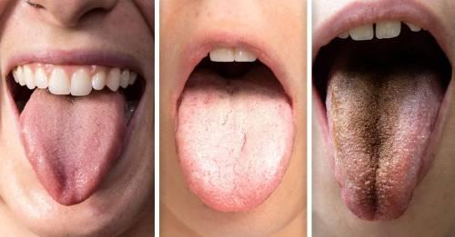 Qué significan los distintos colores de la lengua