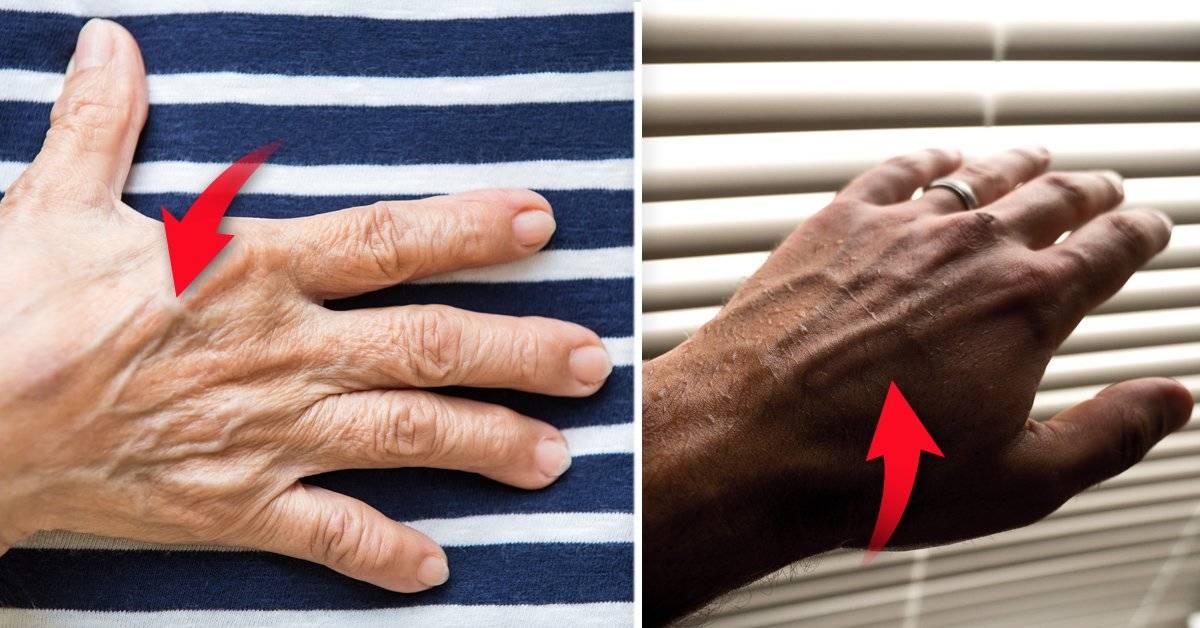 ¿Tienes las venas de las manos marcadas? Este es su verdadero significado