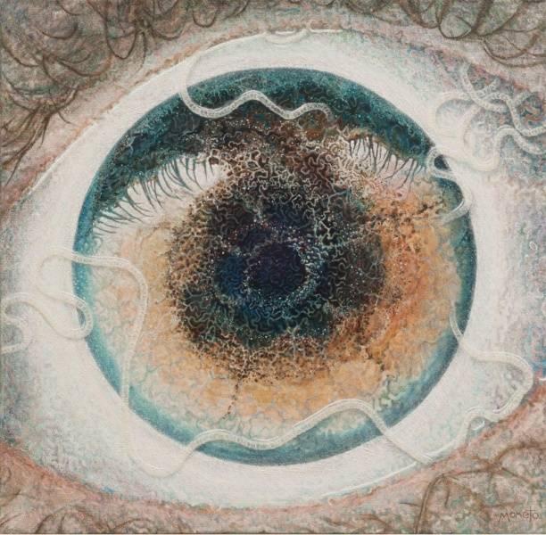 La increíble historia del artista que pintó los gusanos que vivían en su ojo