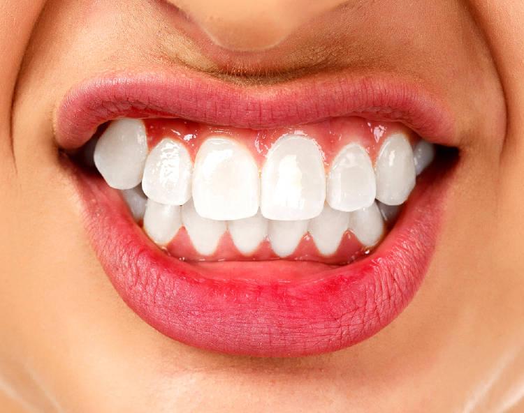 La boca de una persona con los dientes apretados