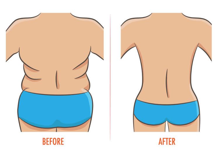 Un dibujo del antes y el después de una persona con llantitas en la espalda
