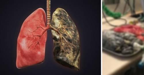 Una médica difundió un video de 2 pulmones reales funcionando que pocos se a..