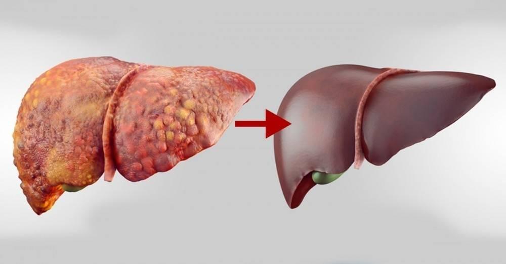 Métodos Para Expulsar Todas Las Toxinas Del Hígado Los Riñones Y La Vejiga Bioguia