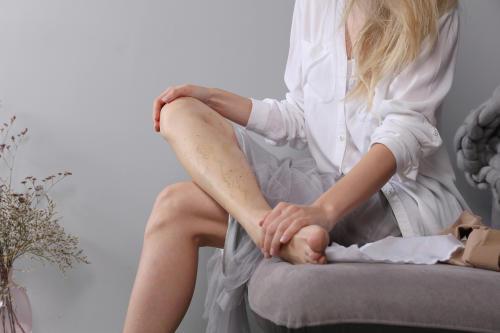 Várices en las piernas: esto es lo que debes evitar hacer cuando sufres de este