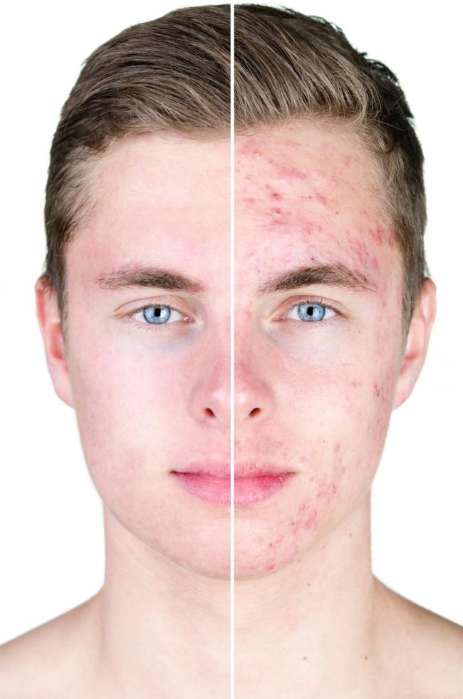 causas de barros en la cara
