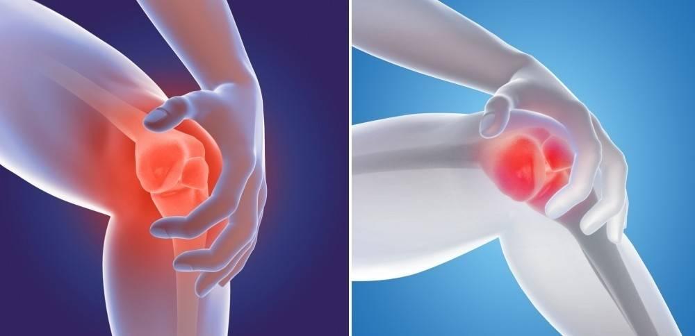 ¿Por qué puede aparecer dolor de rodilla a cualquier edad? Causas y soluciones
