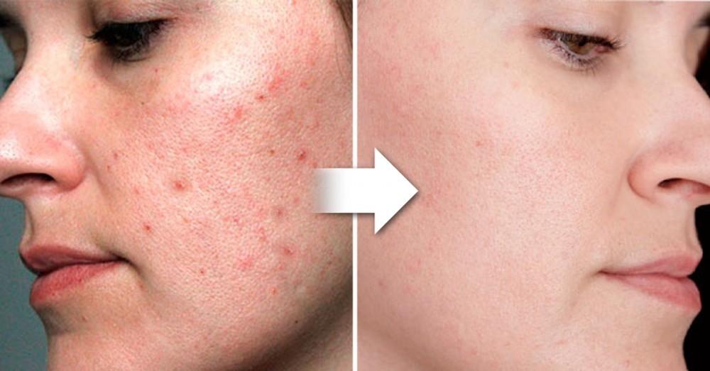 Pastillas acne sin receta