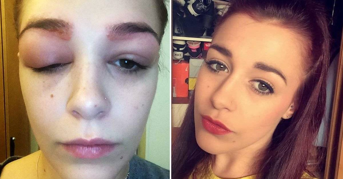Esta chica se tatuó las cejas y vivió su peor pesadilla
