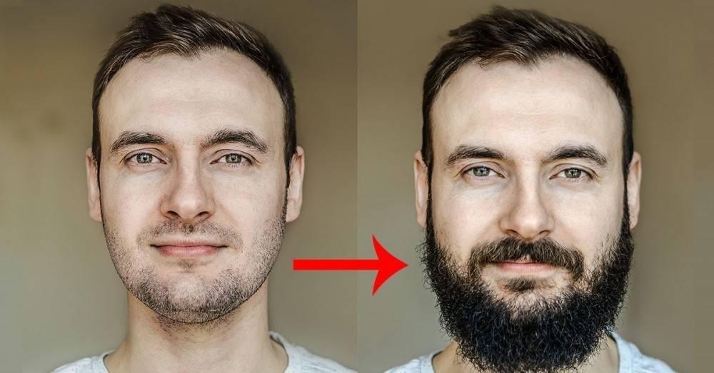 Alimentos que puedes comer para hacer crecer la barba