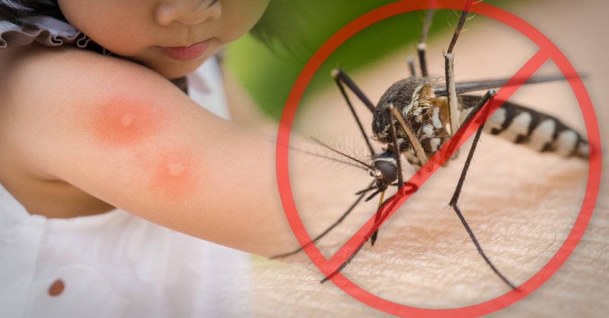 8 formas naturales de alejar a los mosquitos de tu cuerpo