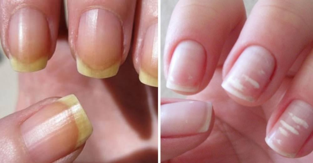 ¿De qué color son tus uñas? Este detalle dice mucho más sobre tu salud de ..