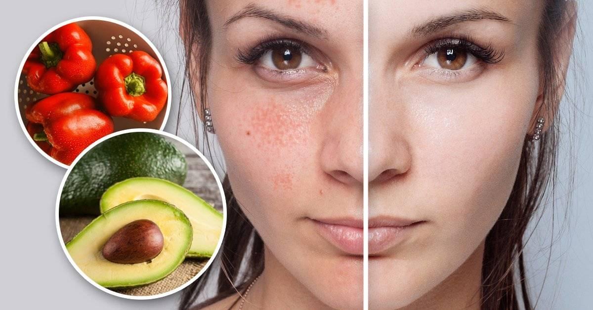 Estos son los mejores alimentos para tener una piel perfecta