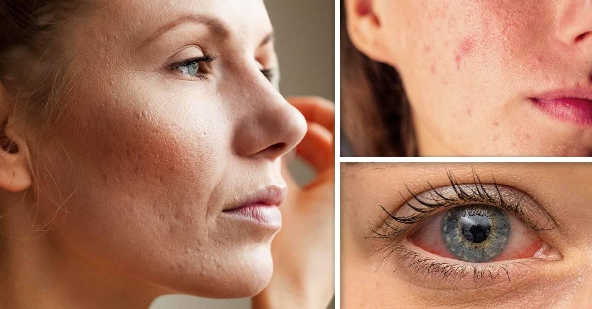5 señales de que puedes ser alérgica a los cosméticos que usas