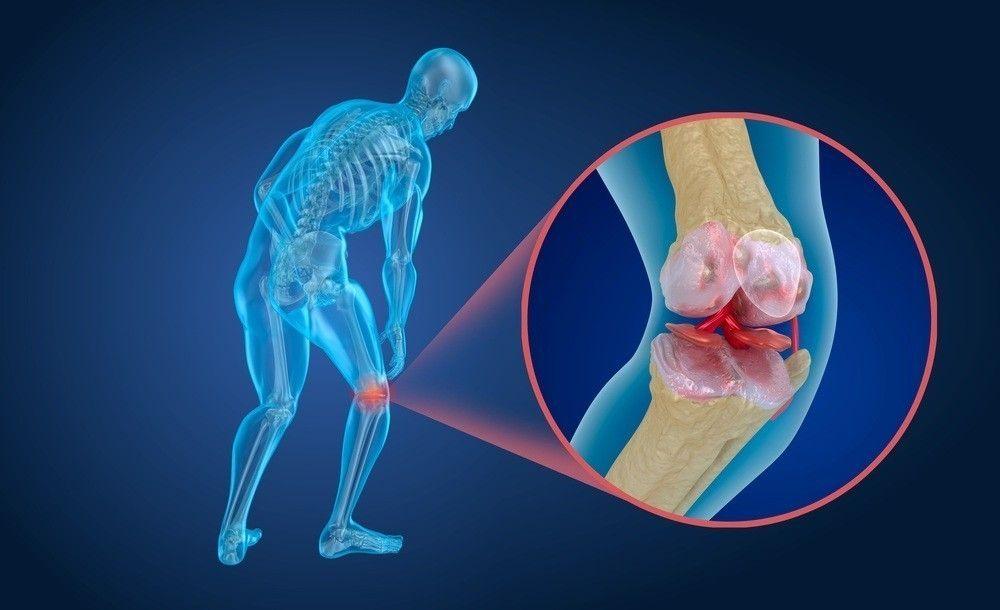 cartílagos de cadera y rodillas