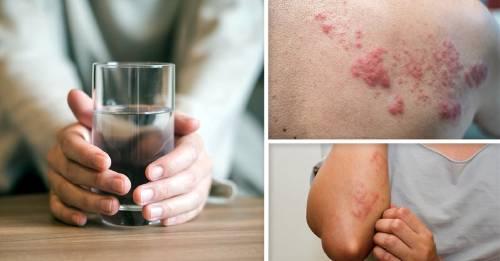 Alergia al agua: así es esta rara enfermedad y así sobrevive una de las pocas mujeres en el mundo que la sufre