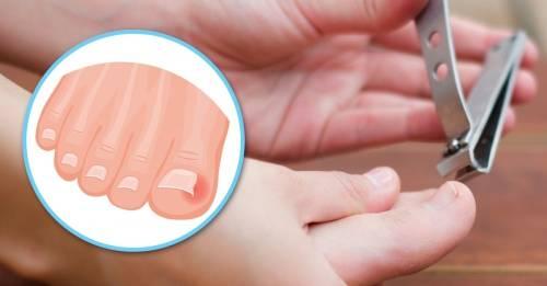 Cómo curar las uñas encarnadas tú mismo de 5 formas