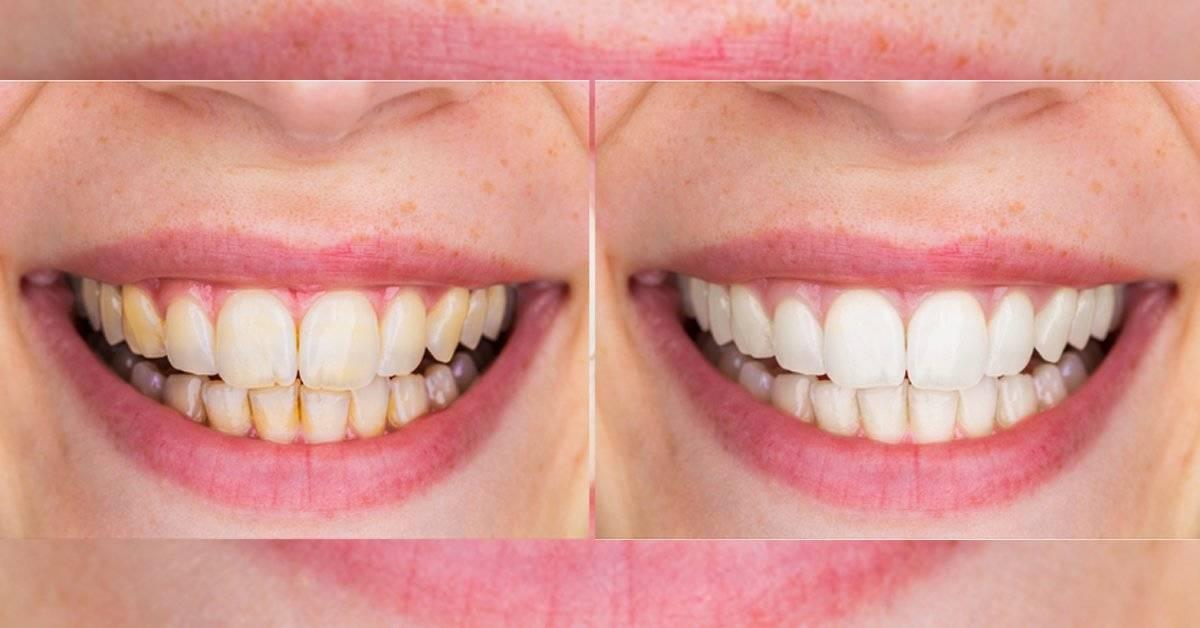 Cómo tener la boca impecable con estos siete útiles consejos
