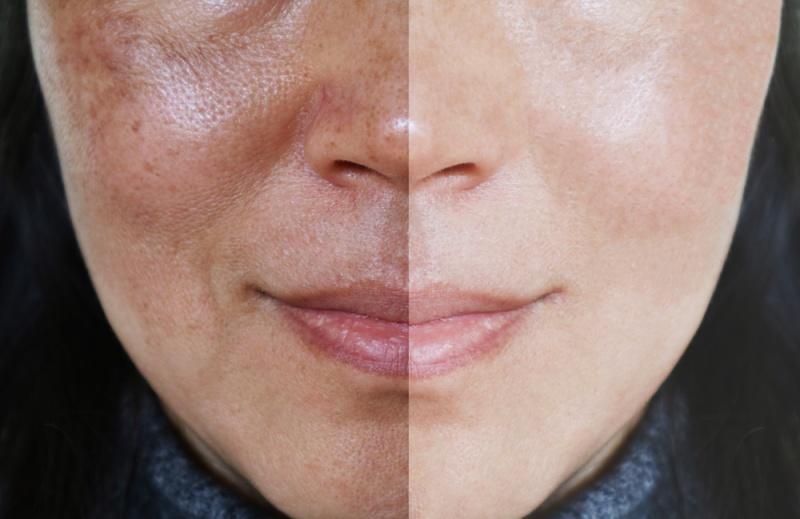 Los Dermatólogos Explican Cuáles Son Las 10 Mejores Vitaminas Para Tu Piel Bioguia