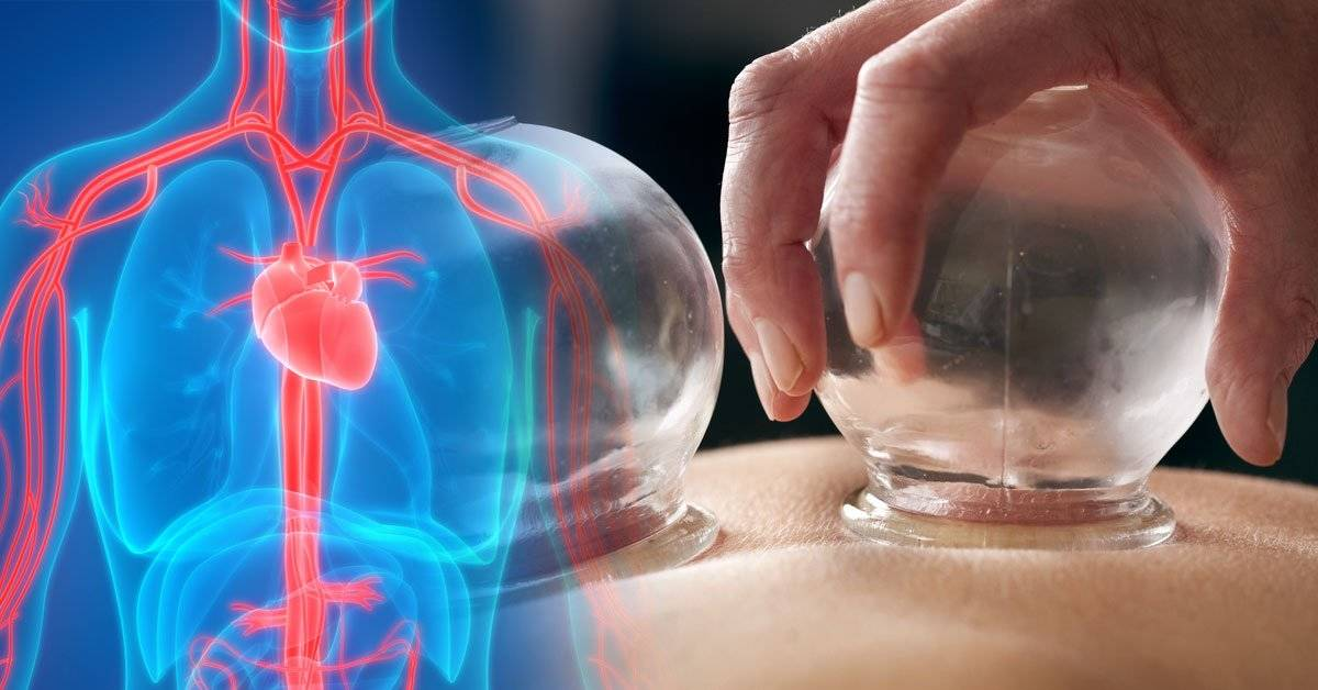 Cupping, la milenaria terapia china que mejora la circulación. ¿Realmente funciona?