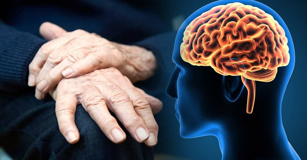 ¿Puede el manganeso producir Parkinson?