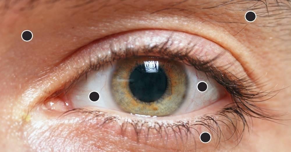 8 cosas que los ojos muestran acerca de la salud