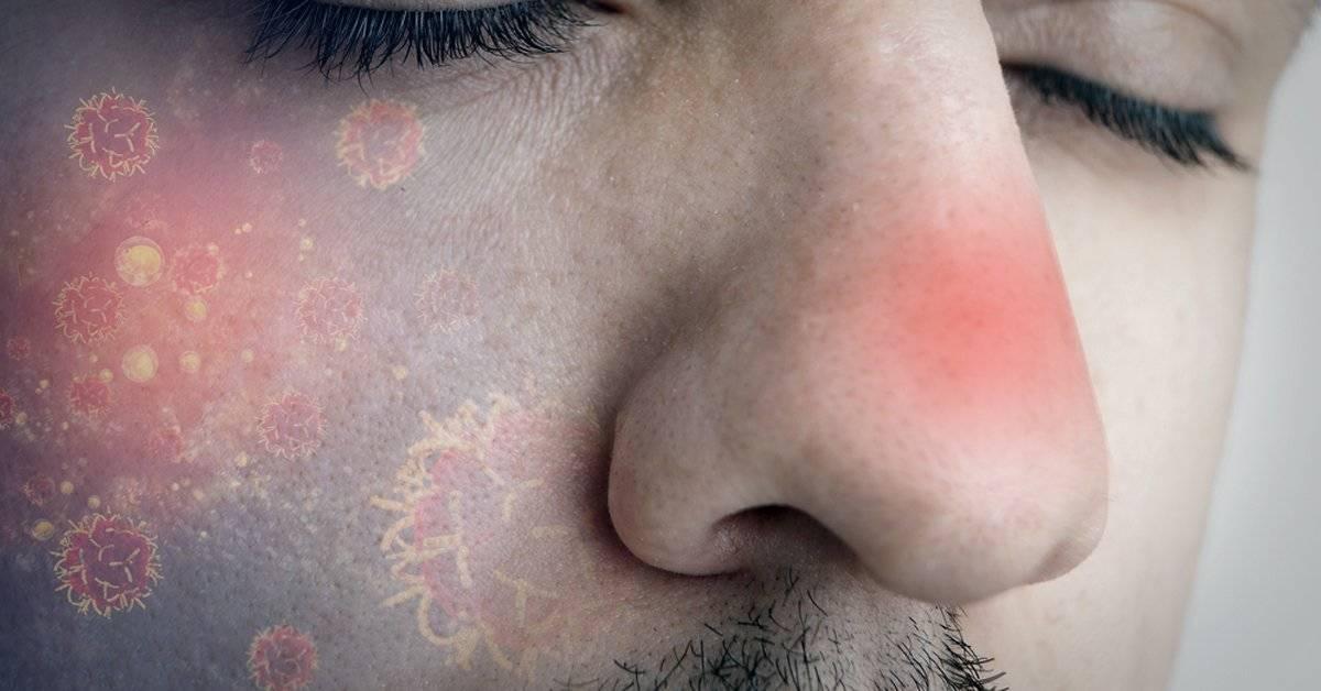 El cáncer de nariz existe y estos son sus síntomas